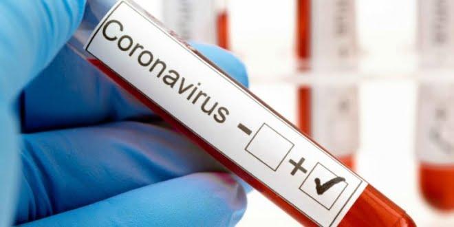Balnearia informó su primer caso de coronavirus