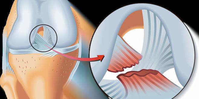 Tu kinesiólogo en casa: ligamento cruzado